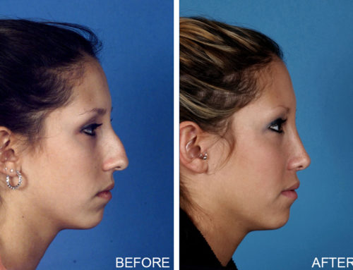 Rhinoplasty