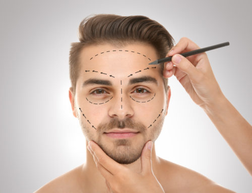 Facelift for Men – Look As Good As You Feel