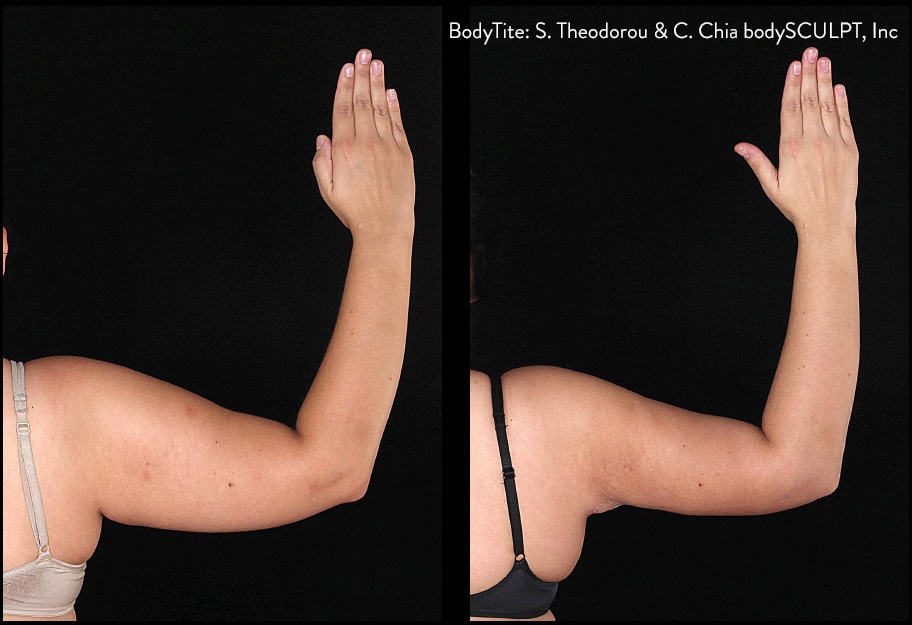 BodyTite Arms Before and After