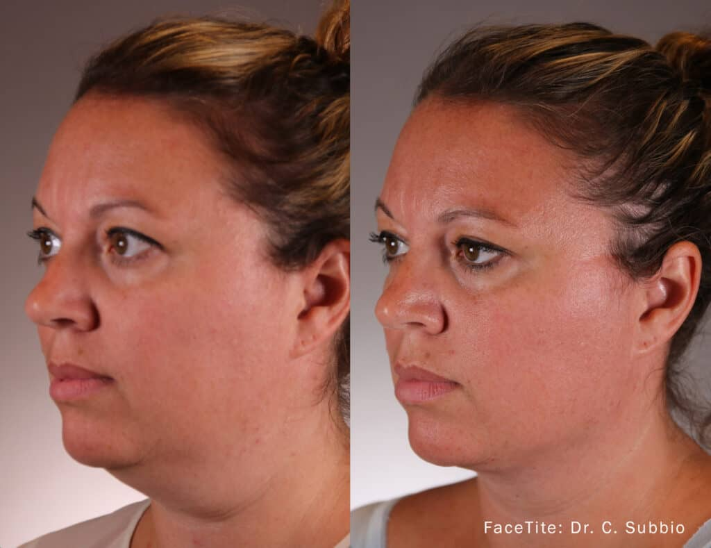FaceTite Before and After Results