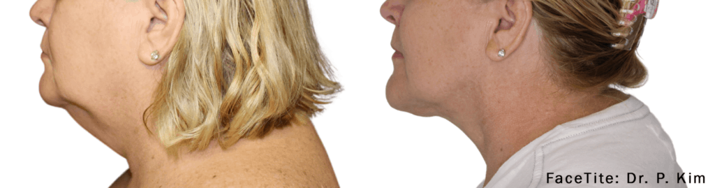 FaceTitle Before and After Neck
