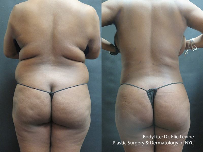 BodyTite: Back and Hips Before and After