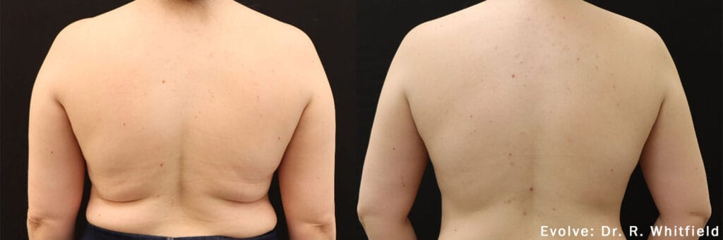 Evolve Before and After Results